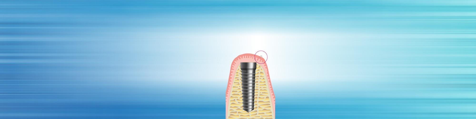 zahnimplantate schritt 2