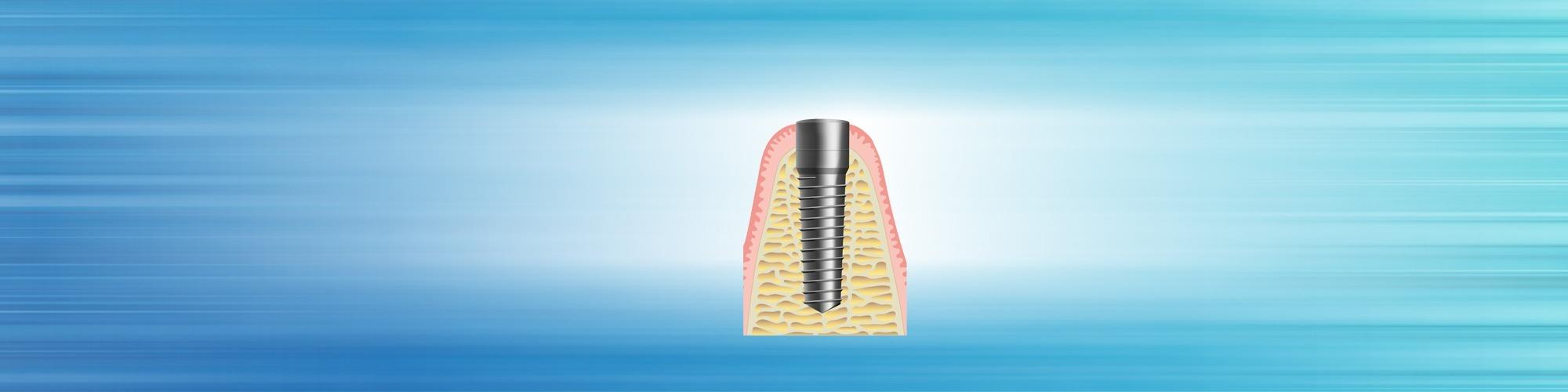 zahnimplantate schritt 3